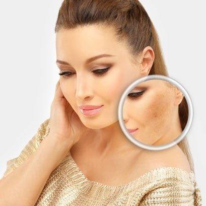 Melasma Removal Before & After Pictures