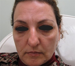 Botox and fillers Before & After Photos b1
