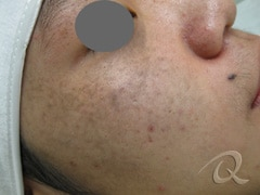 Birthmark Treatment Before & After Photos