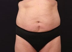 Fat Loss Before & After Photos