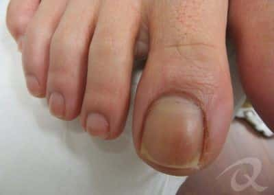 Fungal Nail Treatment Before & After Photo aaa2