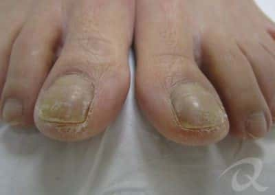 Fungal Nail Treatment Before & After Photo bb1