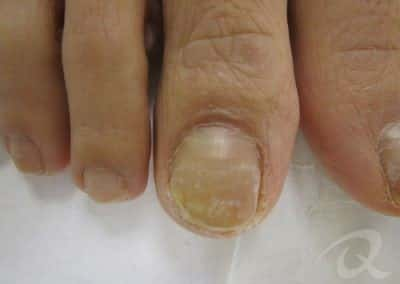 Fungal Nail Treatment Before & After Photo bbb2