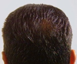 Hair Loss Before & After Photos