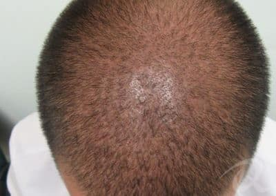 Hair Loss Before & After Photos After