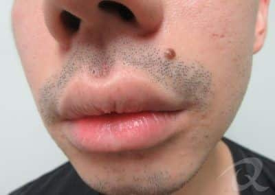 Mole Removal Before & After Photos