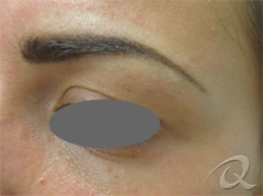 Permanent Makeup Removal Before After Photos