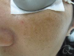 Pigmentationl Treatment Before After Photos