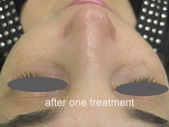 Pigmentationl Treatment Before After Photos