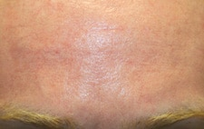 Scar Removal Before After Photos