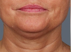 Skin Tightening Before & After Photos
