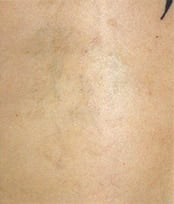 Laser Tattoo Removal Before & After Photos