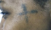 Tattoo Removal Before/After Photos