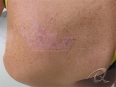 Tattoo Removal Before & After Photos