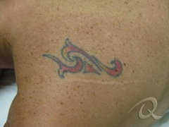 Tattoo Removal Before|After Photo