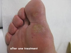 Wart Removal Before & After