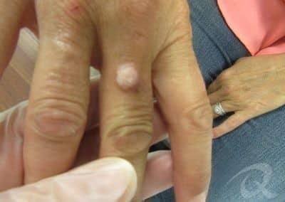 Wart Removal Before & After Photos