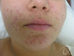 Acne Scarring Treatment Before & After Photos
