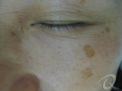 Age Spots Removal Before & After Photos