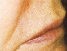 Laser Hair Removal Before & After Photos