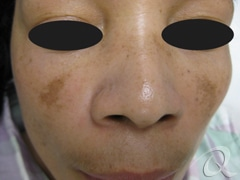Melasma Before & After Photos