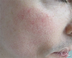 Rosacea Before & After Photos
