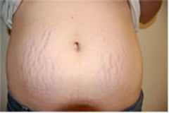 Stretch Mark Removal Before After Photos