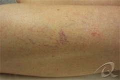 Vascular Vein Removal Before & After Photos