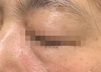 Dark circle eyes before after pictures