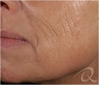 Wrinkles Removal Before After Pictures