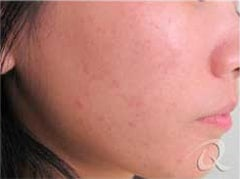 Acne before after pictures after-7