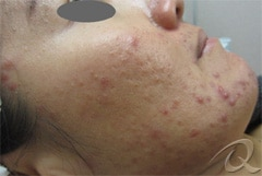 Acne before after pictures