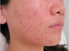 Acne before after pictures before-7