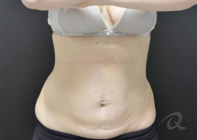 fat loss before after pictures