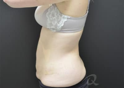fat loss before after pictures b4