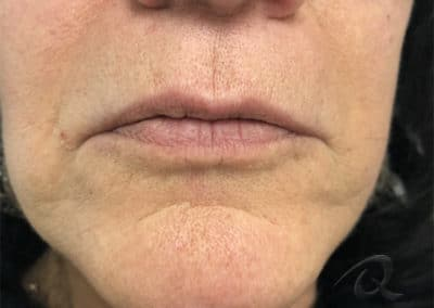 Fillers before after pictures