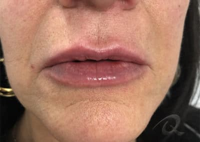 Fillers before after pictures lips after-4