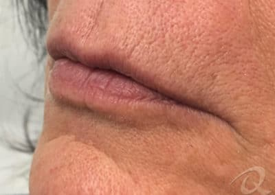 Fillers before after pictures-2-1