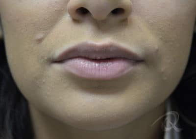 Fillers before after pictures lips before-3