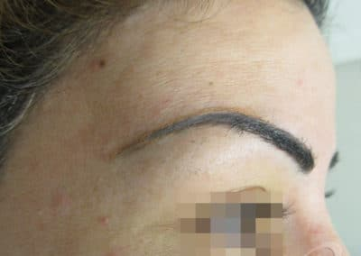 Permanent Makeup Removal Before After Photos before21