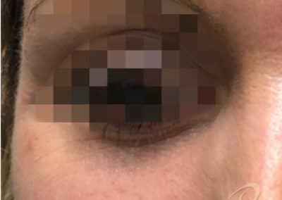 Dark Circle Eye Before After Picture After-13