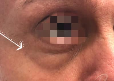 Eye bag before after photo