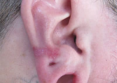 Keloid before after pictures