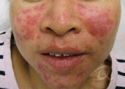 Acne Treatment Before After Pictures