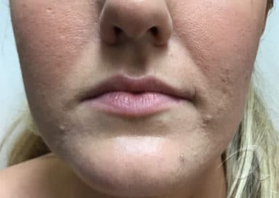 Fillers Injection Before & After Pictures