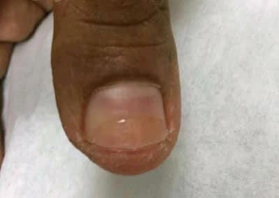 Wart Before & After Pictures