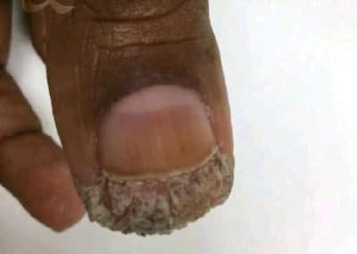 Wart Before & After Photos