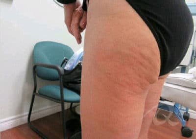 Cellulite Before & After Pictures