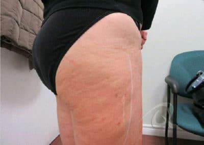 Cellulite Reduction Before & After Pictures