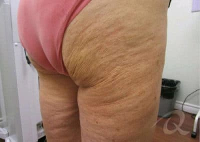 Cellulite Before After Pictures